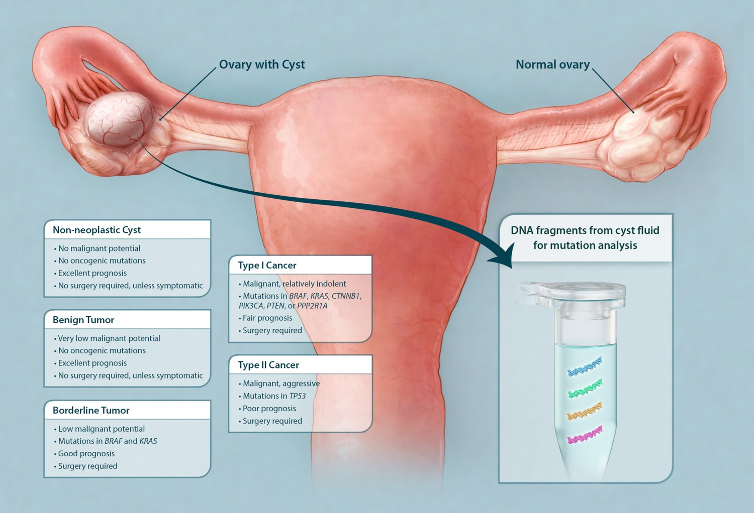 Ovarian cancer or cysts. Ovarian cancer from cyst