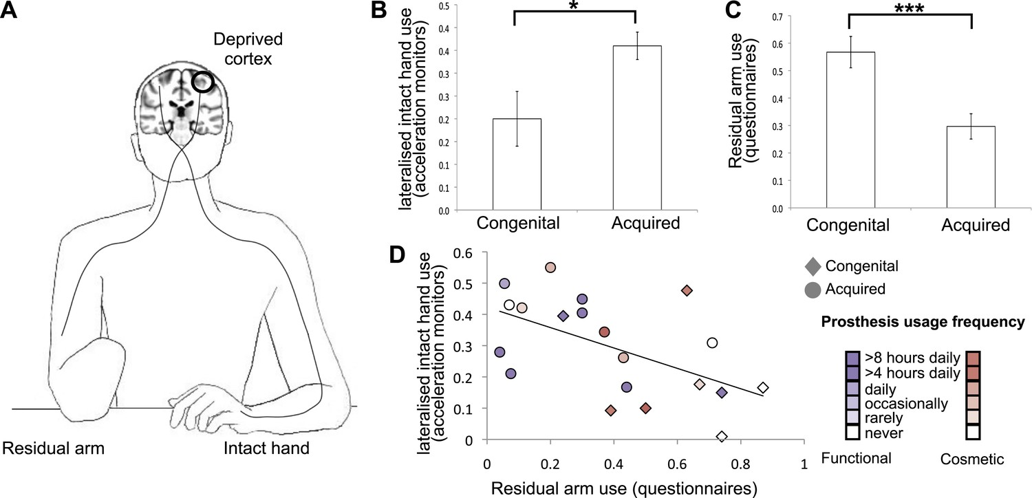 Deprivation-related and use-dependent plasticity go hand in