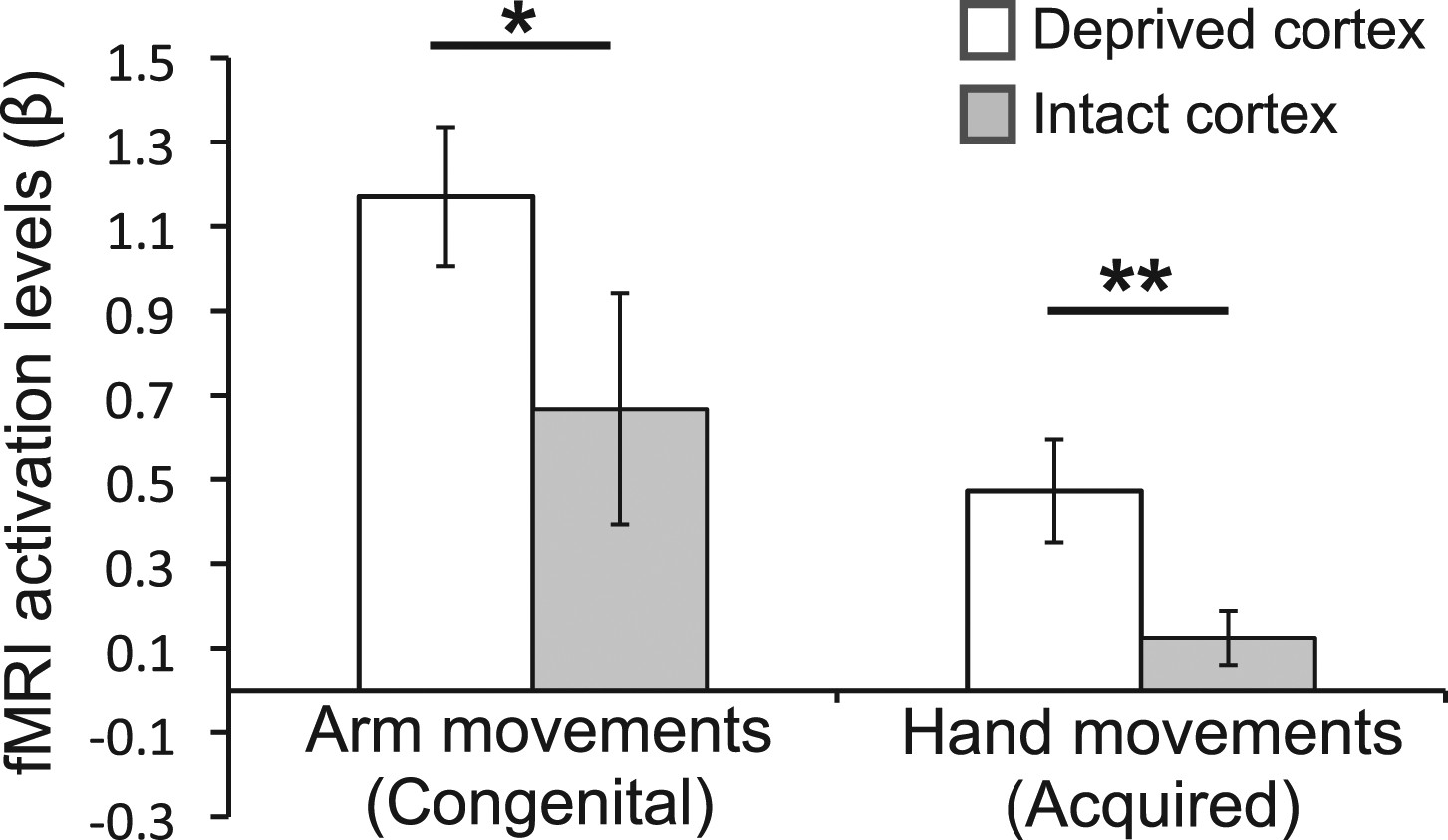 Deprivation-related and use-dependent plasticity go hand in hand | eLife