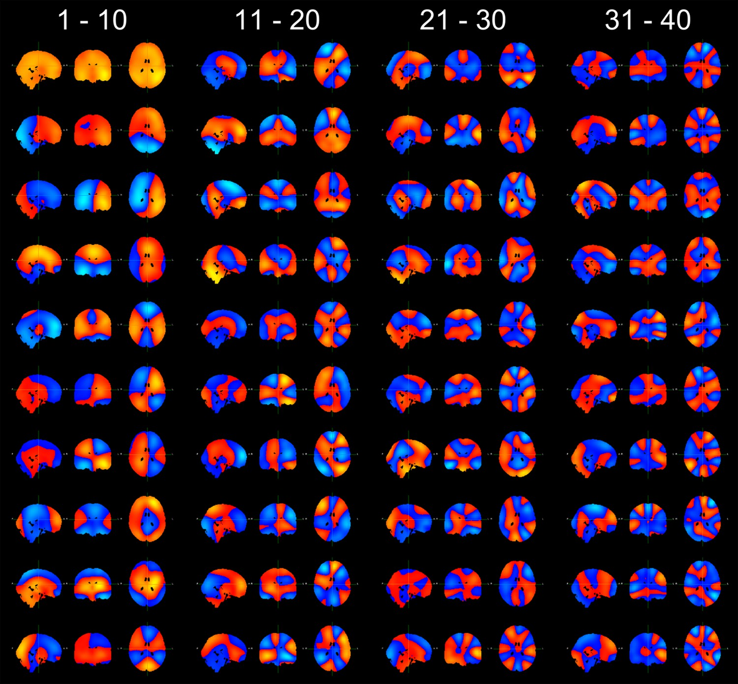 Fast Transient Networks In Spontaneous Human Brain Activity Elife Electric Circuits And Fields Nuffield Foundation Spatial Topographies Of The 40 Principal Components Arranged Order Their Variance Top To Bottom Left Right