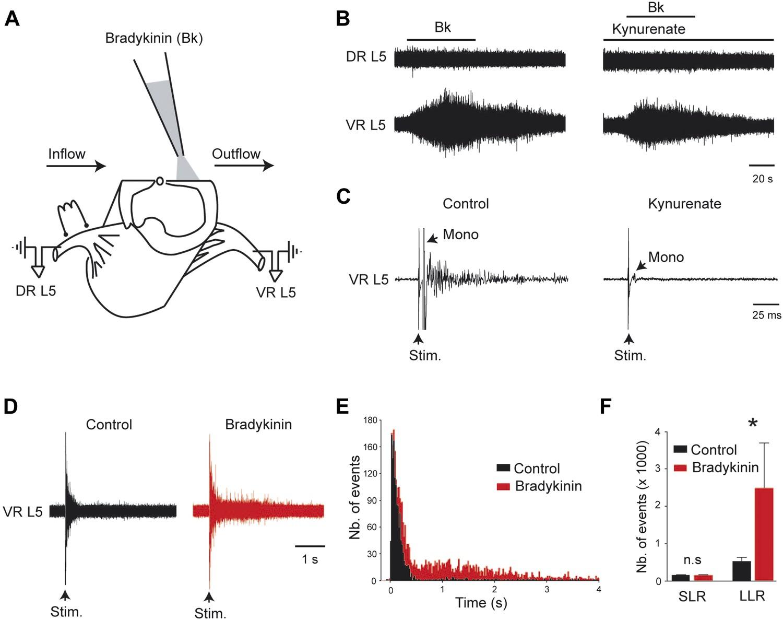 Sensitization Of Neonatal Rat Lumbar Motoneuron By The Inflammatory Circuit Diagram For Dc Motor Control A Collins Bradykinin Potentiates Gain Sensory Inputs Into System