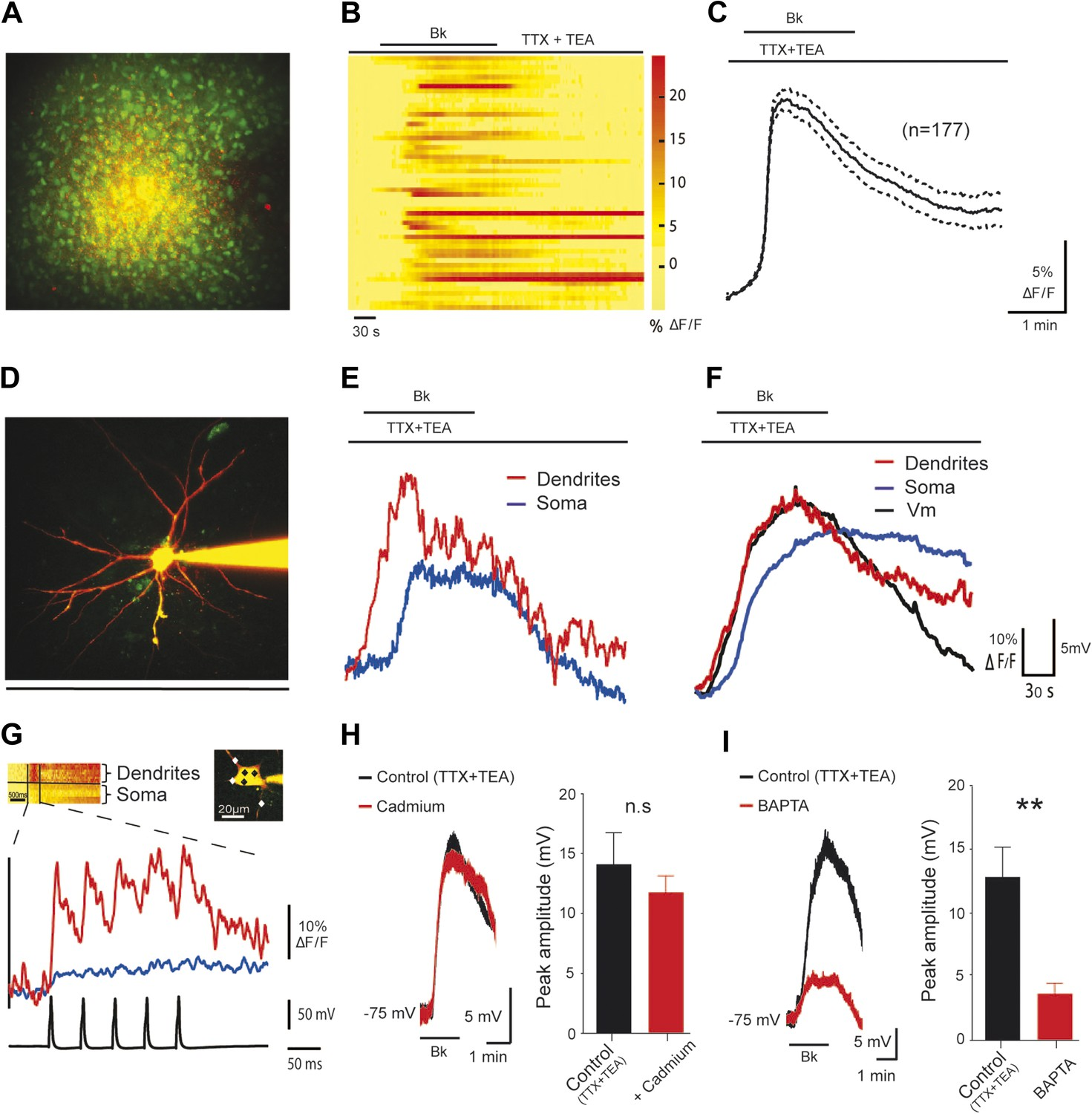 Sensitization Of Neonatal Rat Lumbar Motoneuron By The Inflammatory Electronic Circuits Basic Calculations And Equations Attila39s Bk Induced Depolarization Motoneurons Is Associated With Ca2 I Rise In Dendrites