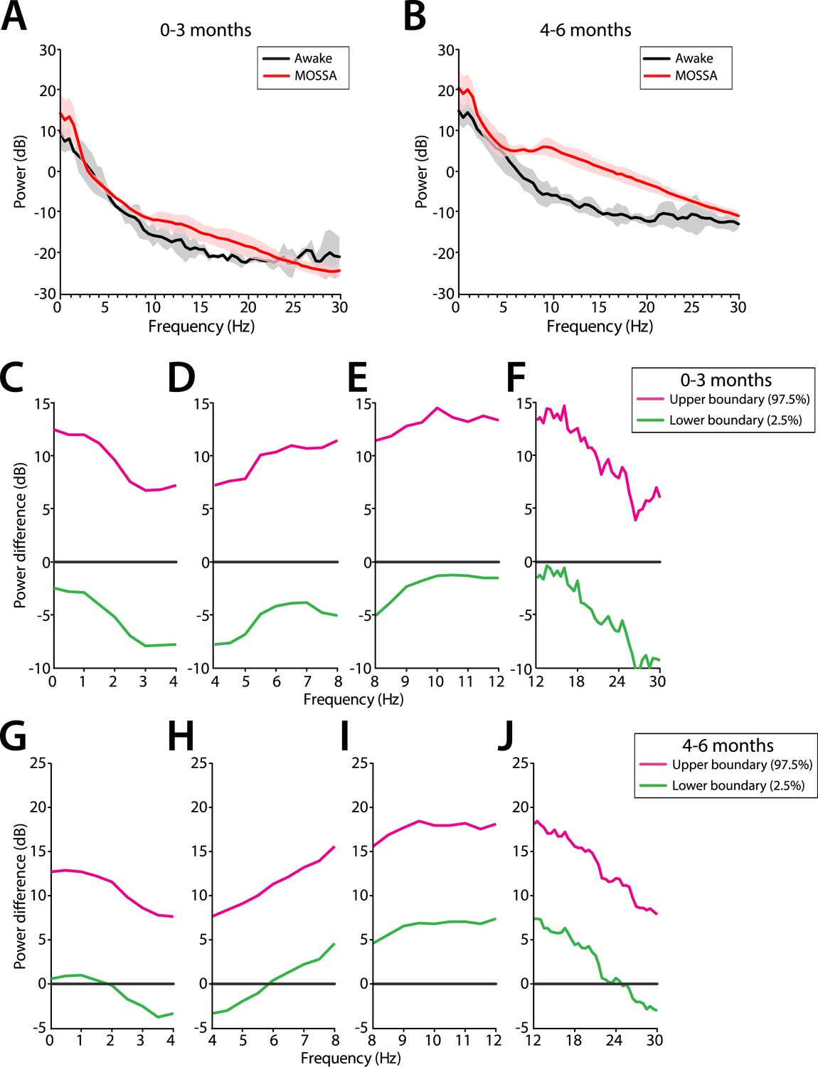 Age Dependent Electroencephalogram Eeg Patterns During Sevoflurane Schematic Frontal Power Changes Between The Awake State And Mossa