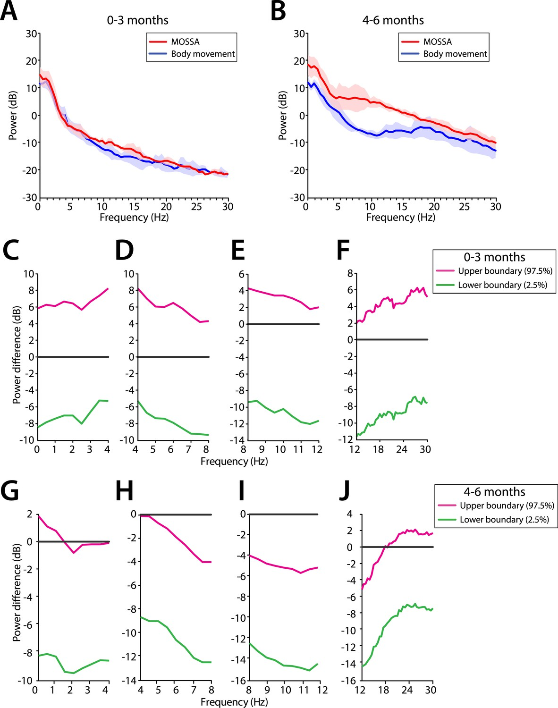 Age-dependent electroencephalogram (EEG) patterns during