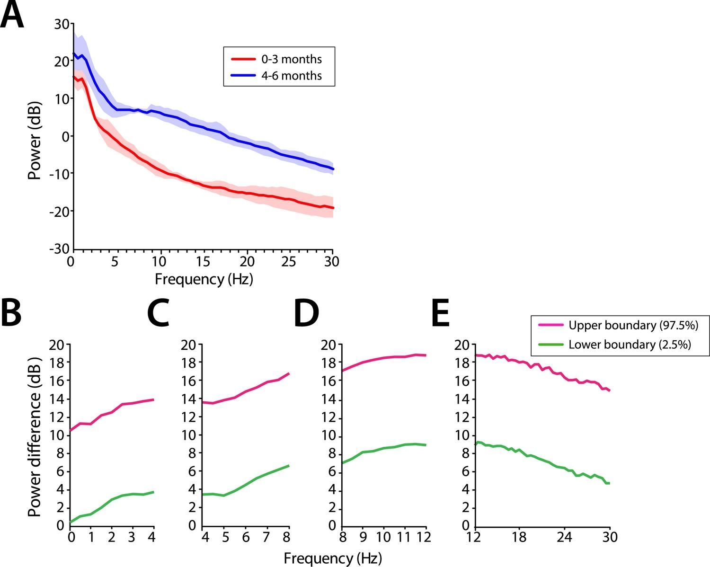 Age-dependent electroencephalogram (EEG) patterns during sevoflurane