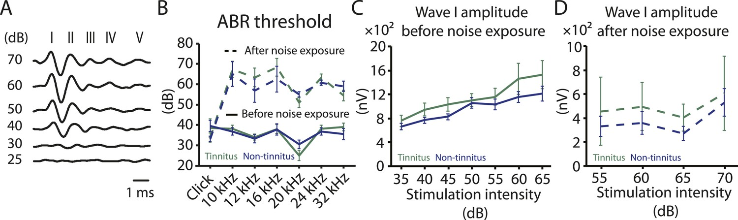 Noise-induced plasticity of KCNQ2/3 and HCN channels