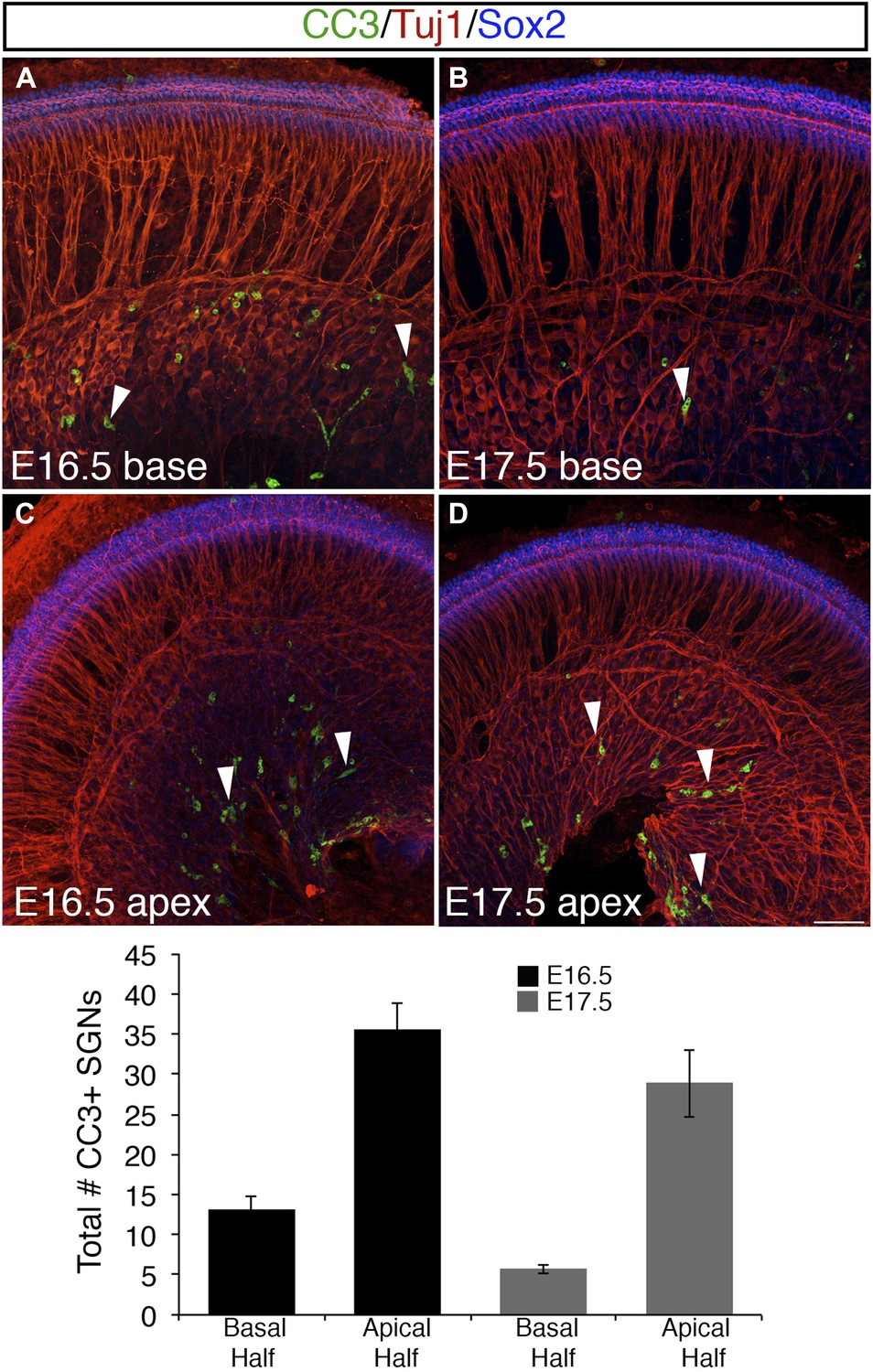 Neuropilin 2 Semaphorin 3f Mediated Repulsion Promotes Inner Hair Apex Wiring Solutions Ltd Programmed Cell Death Apoptosis Is Limited In Sgns At E165 And E175