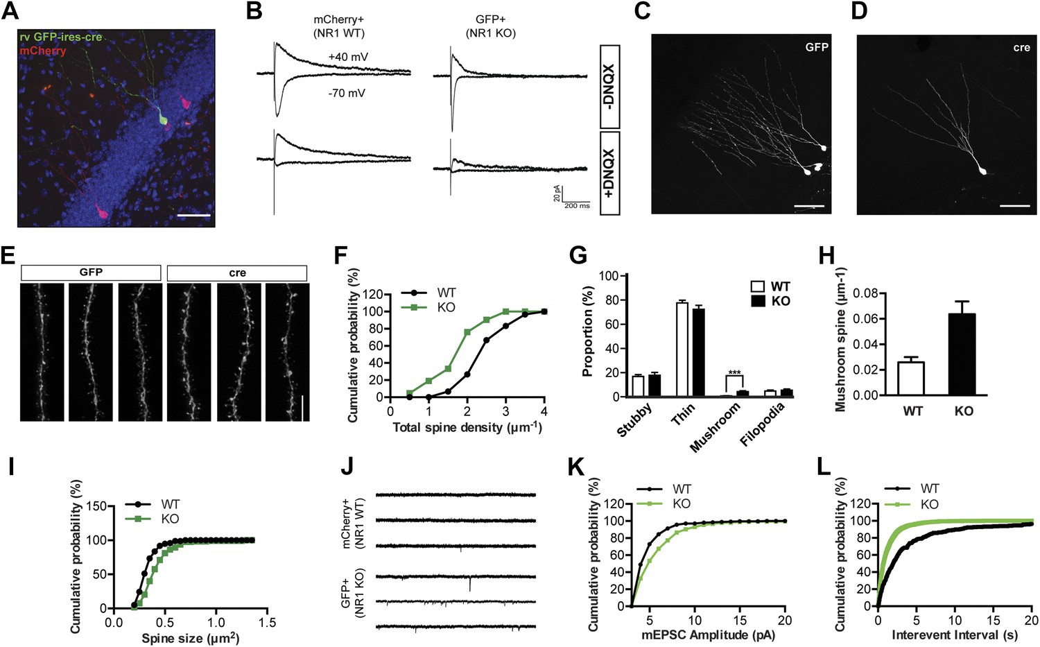 Distinct Roles Of Nmda Receptors At Different Stages Granule Cell 2008 Shaker 1000 Wiring Diagram Nr1 Ko Cells Display Decreased Spine Growth But Enhanced Maturation And Ampar Activity 4 Weeks Age