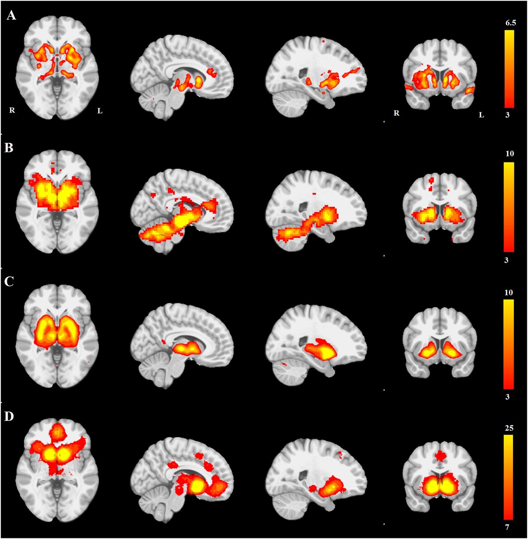 Network structure of brain atrophy in de novo Parkinson's disease