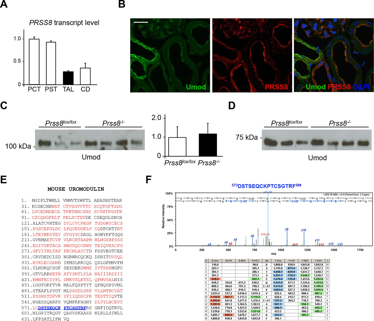 The serine protease hepsin mediates urinary secretion and