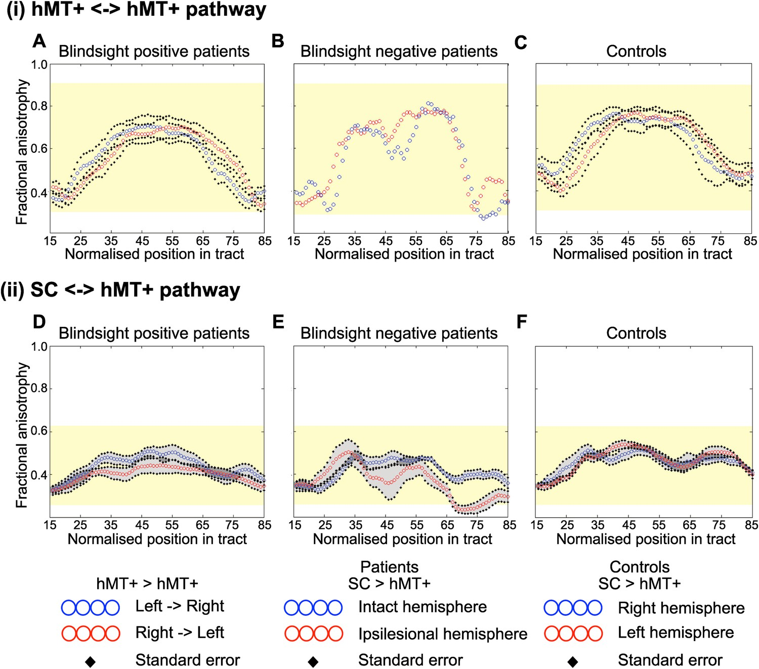 Human Blindsight Is Mediated By An Intact Geniculo Extrastriate Bridge Tips For Successfully Designing Full Half Circuits Average Fractional Anisotropy Along The Interhemispheric Hmt Pathway And Ipsilateral Between Sc