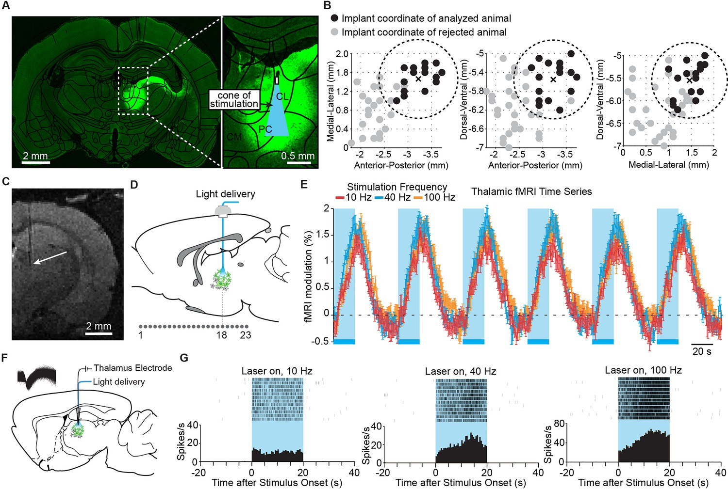 Frequency Selective Control Of Cortical And Subcortical Networks By Rc Timing Circuit Simulates An Developer Andrew Duffy Targeted Stimulation Central Thalamus Evokes Positive Bold Changes Increases In Neuronal Firing At The Site