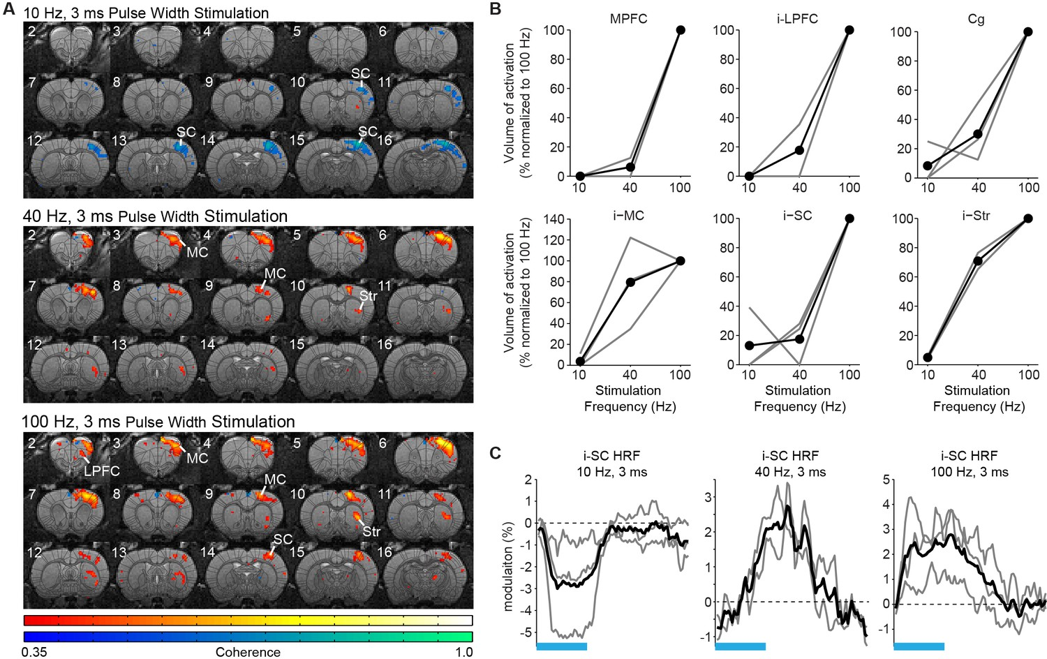 Frequency Selective Control Of Cortical And Subcortical Networks By Chicken Wing Diagram Jim Ekstrom The Dependent Recruitment Forebrain Central Thalamus Its Over Bold Signal Polarity Are Preserved When Pulse Width Is