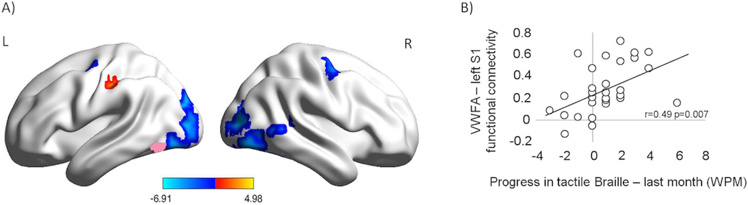 Massive cortical reorganization in sighted Braille readers
