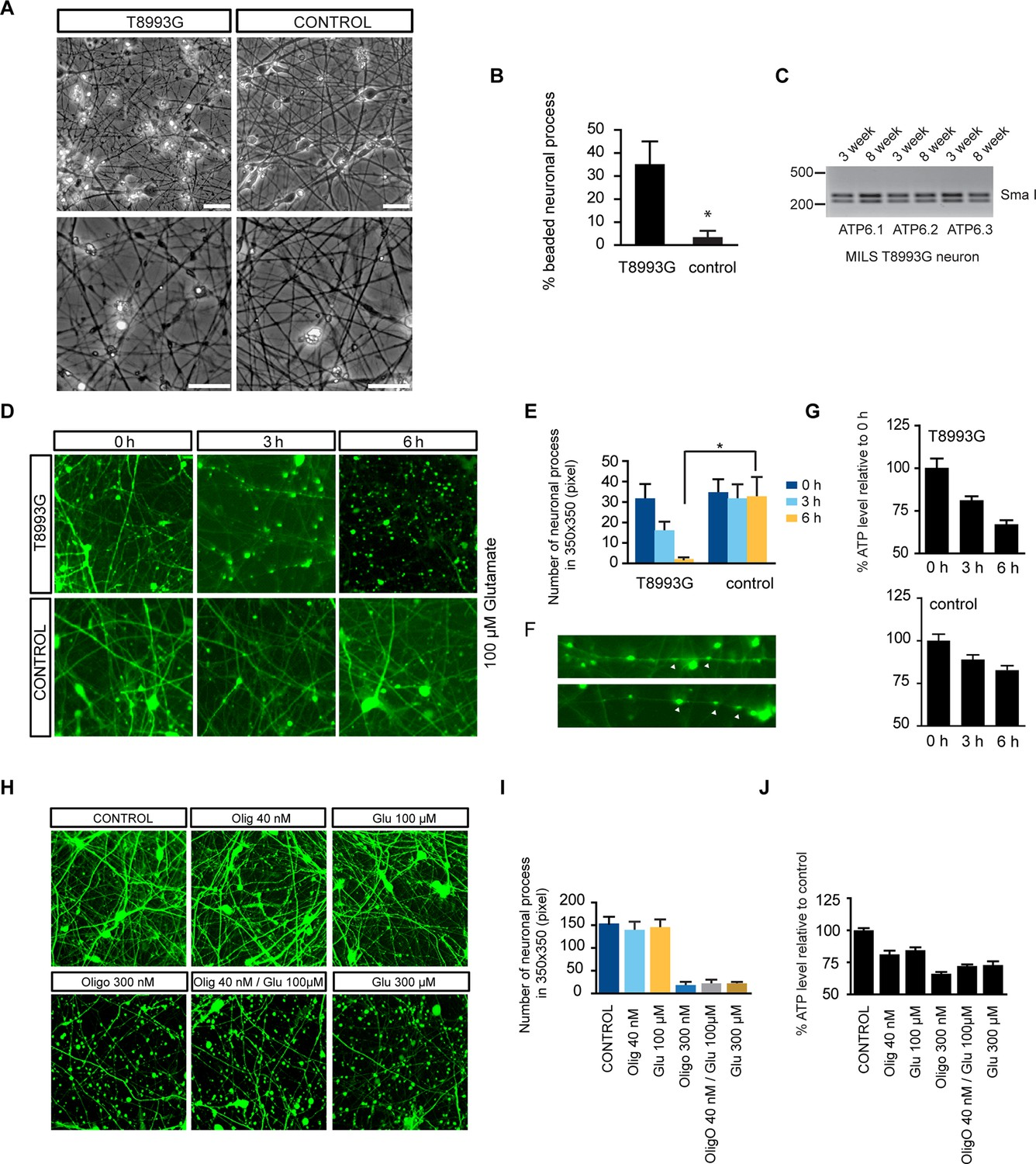 Depleted Atp Levels Causes Neural >> Alleviation Of Neuronal Energy Deficiency By Mtor Inhibition As A