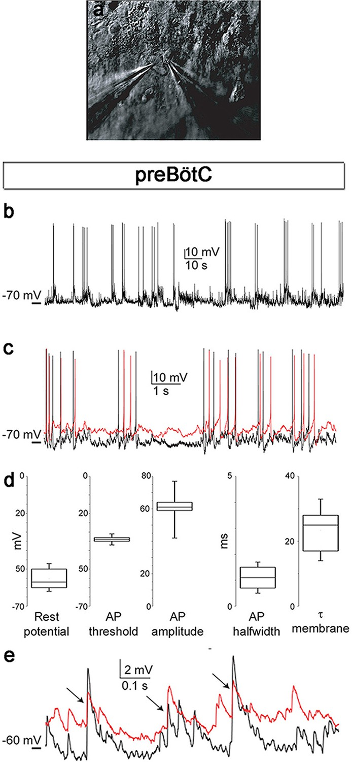 Co2 Evoked Release Of Pge2 Modulates Sighs And Inspiration As 2201phasereversingswitchdrumswitchwiringdiagramjpg Neuronal Electrical Activity Indicates Preserved Networks