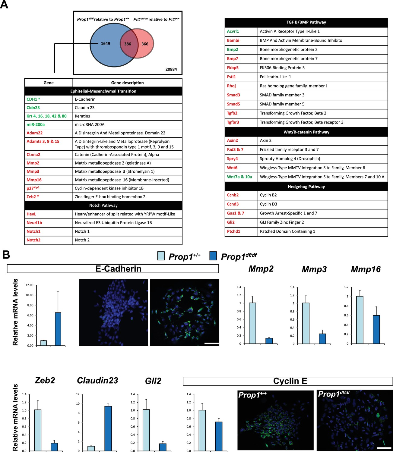 PROP1 triggers epithelial-mesenchymal transition-like