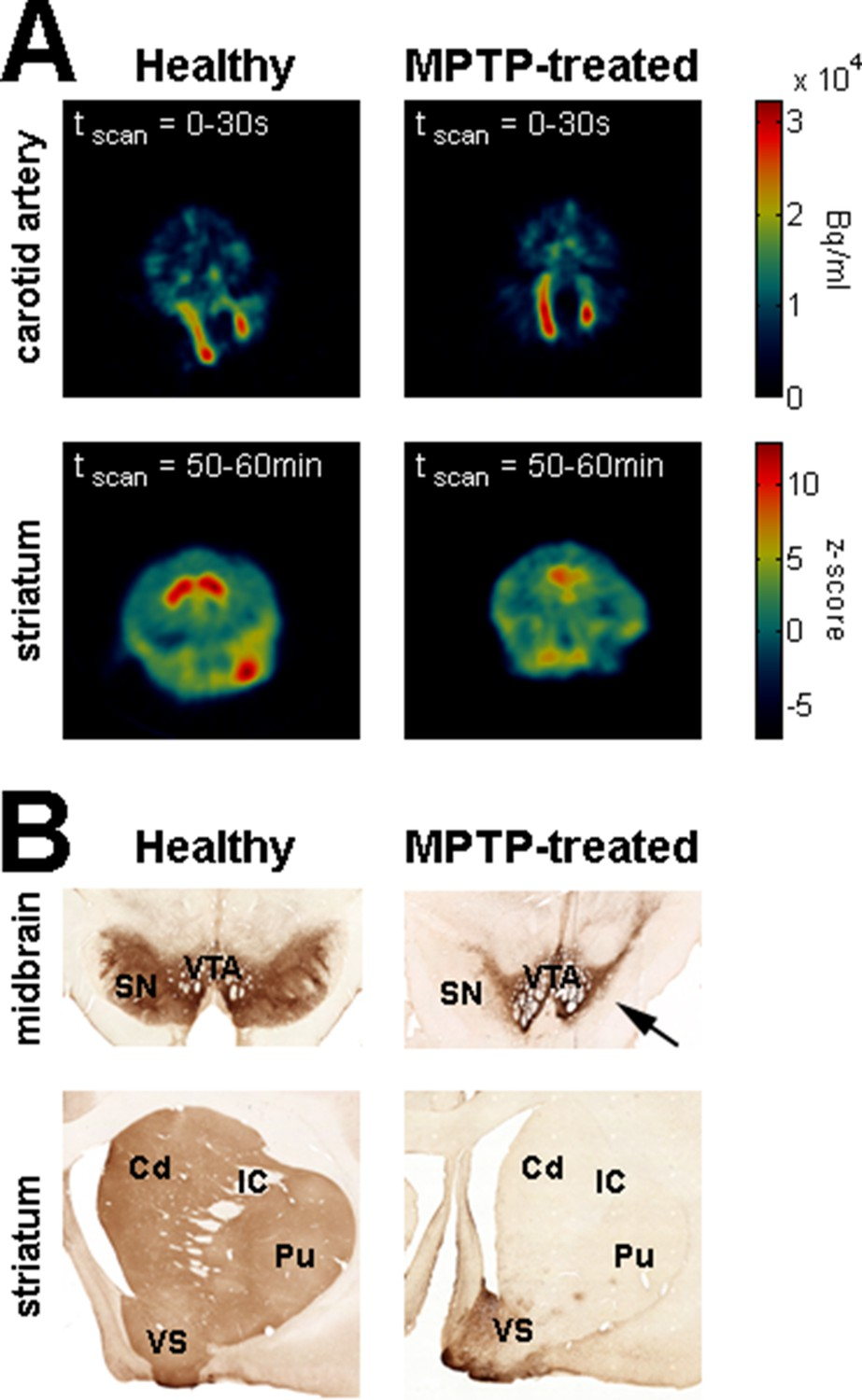 Subthalamic Not Striatal Activity Correlates With Basal Ganglia 06 15 2005 I Went Ahead And Got Quotes For Replacement Equipment Dopamine Depletion Assessment In Parkinsonism
