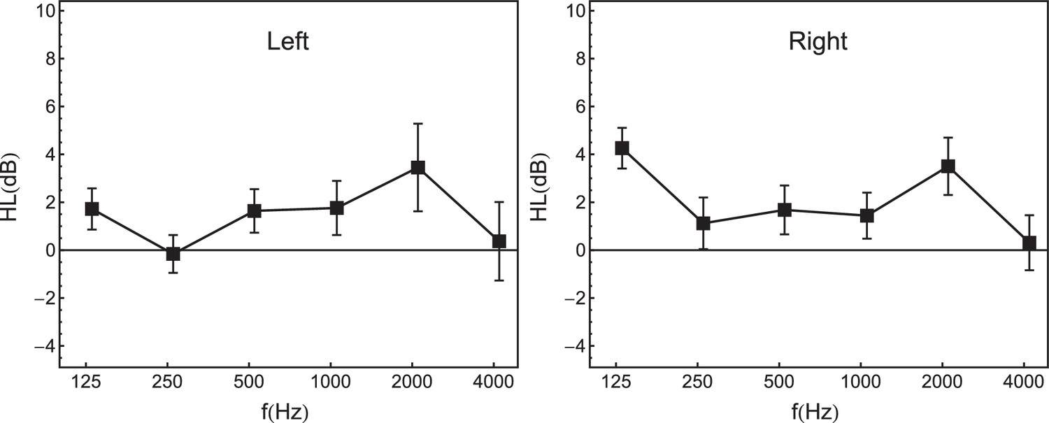 Individual differences in selective attention predict speech
