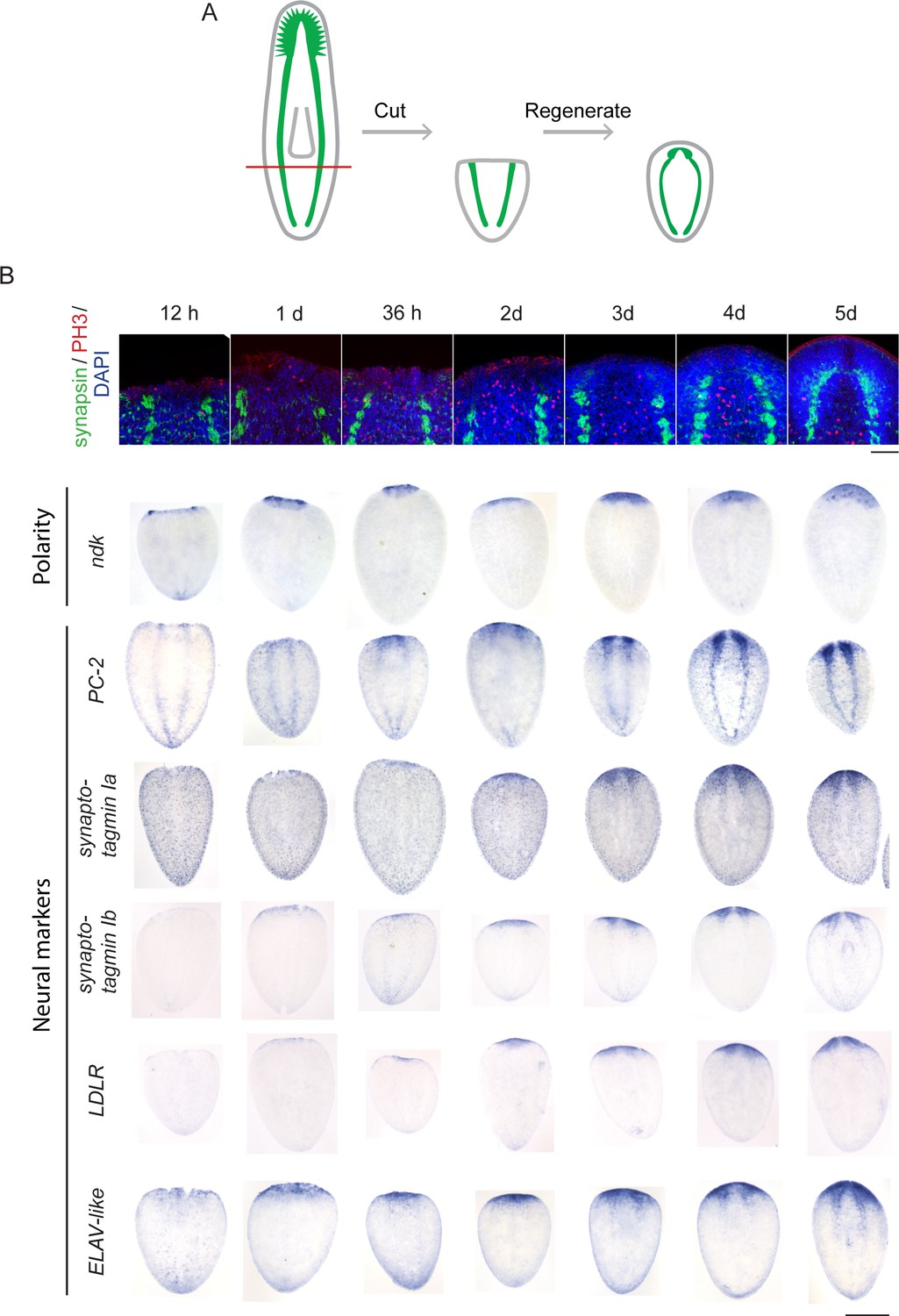 A functional genomics screen in planarians reveals regulators of whole-brain regeneration