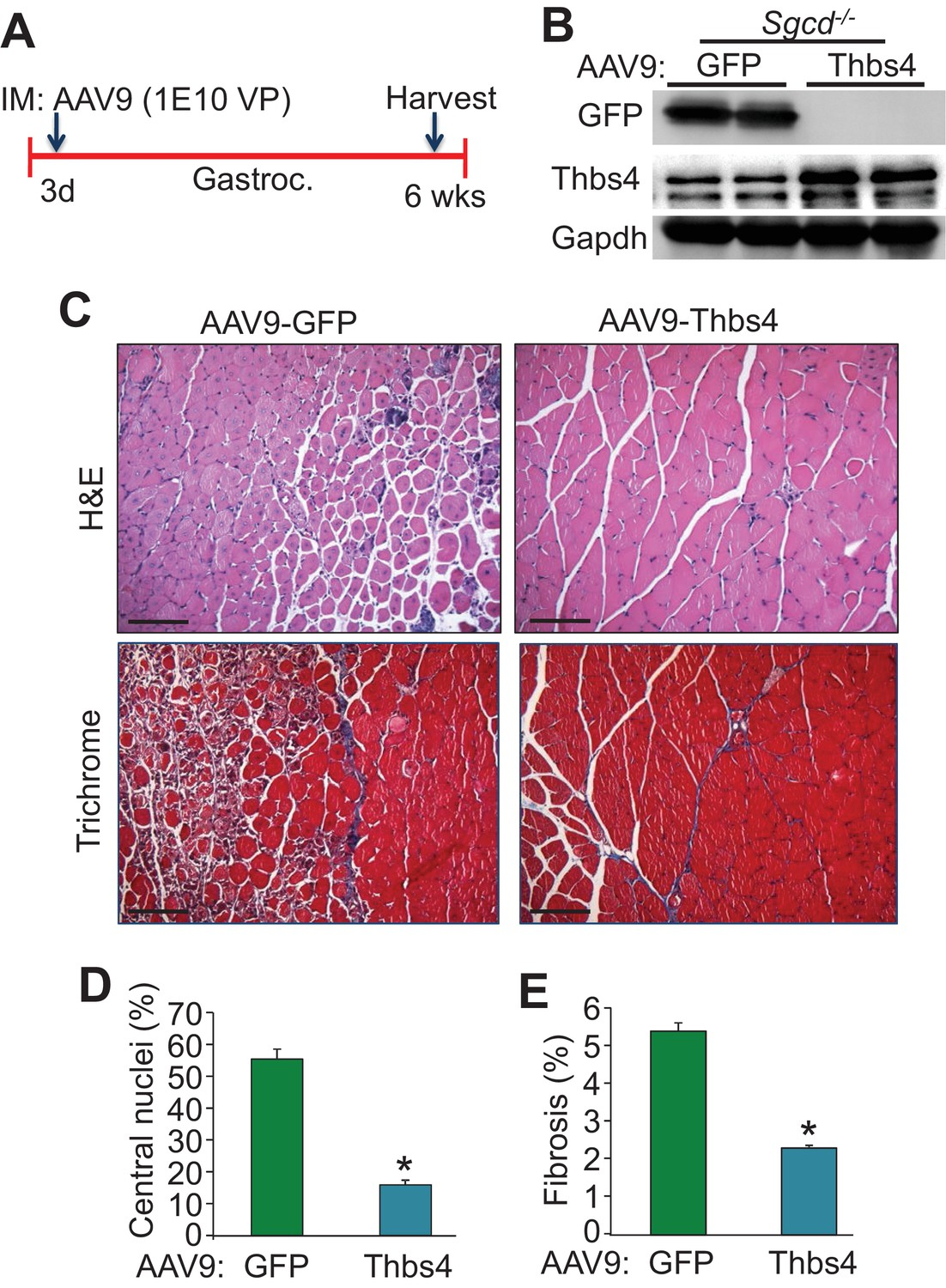 Thrombospondin expression in myofibers stabilizes muscle membranes ...