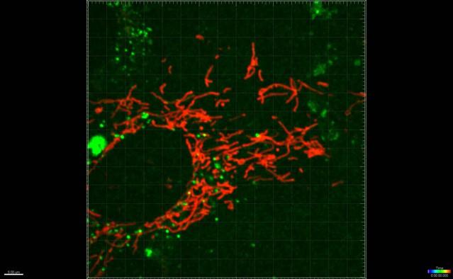 Mouse Tmem135 mutation reveals a mechanism involving