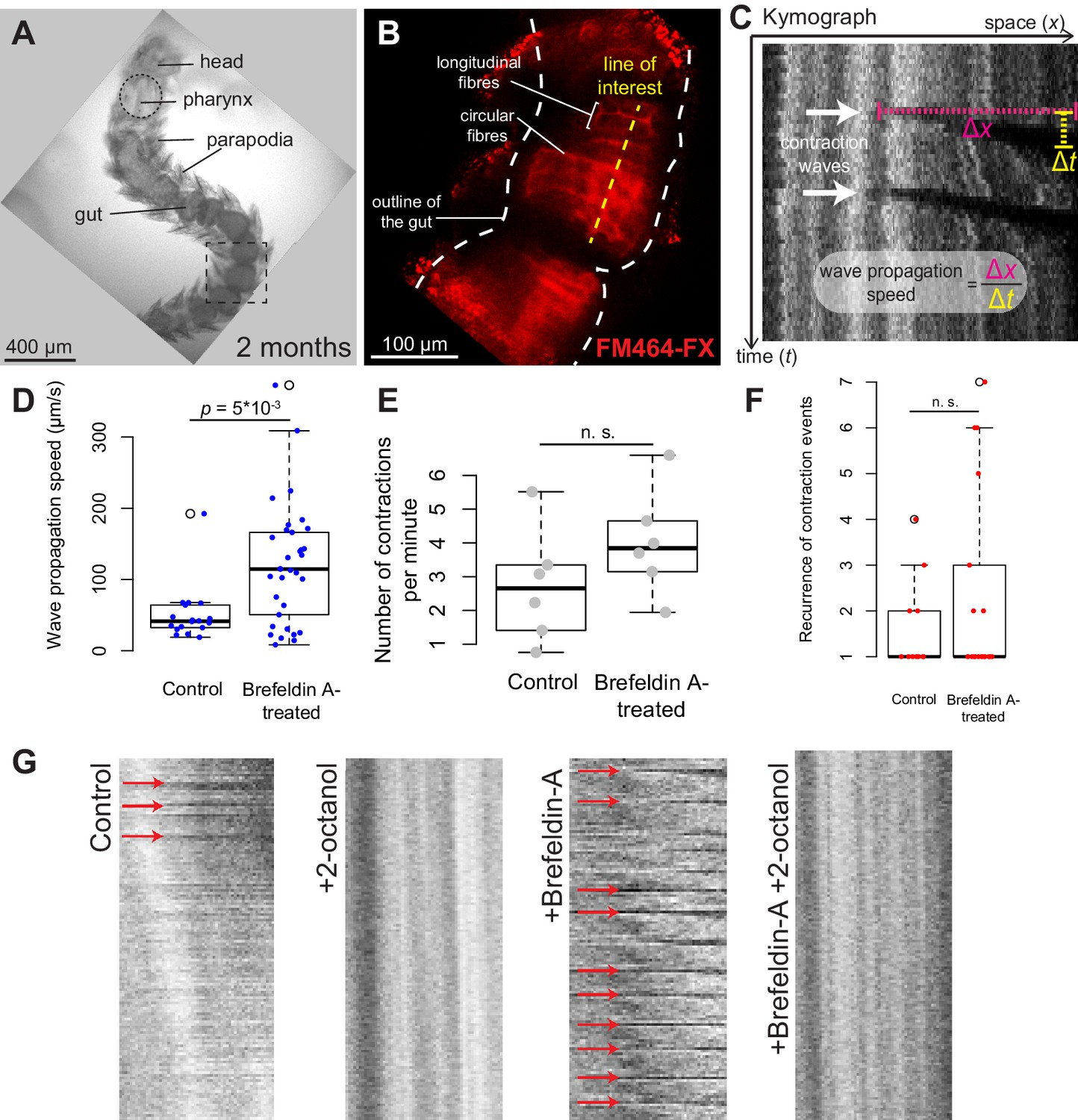 The Evolutionary Origin Of Bilaterian Smooth And Striated Myocytes Muscles Organs Diagram A Sea Anemone Look From Inside Platynereis Gut Peristalsis Is Independent Nervous Inputs Dependent On Gap Junctions