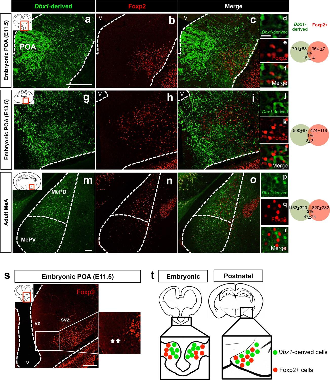 Medical abbreviations poa - Embryonic And Postnatal Segregation Of Dbx1 Derived And Foxp2 Cells