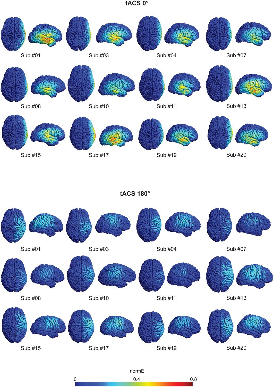 Externally induced frontoparietal synchronization modulates network ... 9772019cb57f9