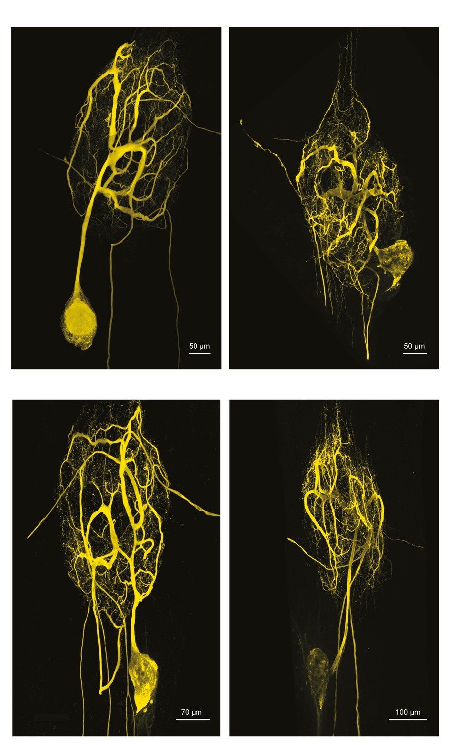Research Identifies Complex Of Neurons >> Sloppy Morphological Tuning In Identified Neurons Of The Crustacean