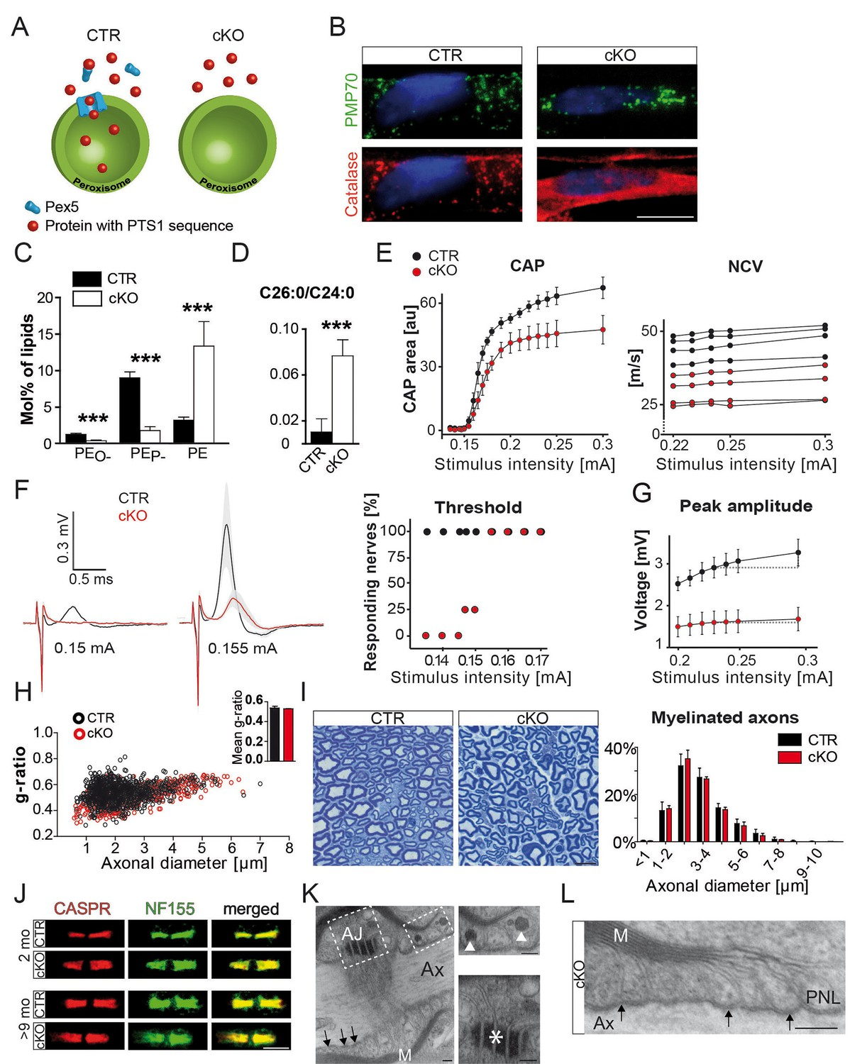 Peroxisomal dysfunctions cause lysosomal storage and axonal