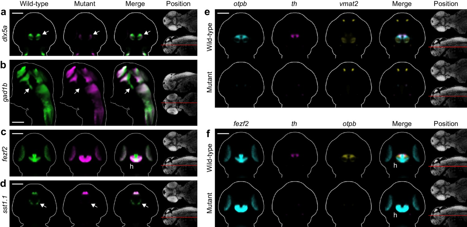 Automated Deep Phenotyping Of The Vertebrate Brain Elife Obviously Circle With M In It Is Fan Motor Uncovers Known And Novel Diencephalic Deficits Fezf2 Mutants