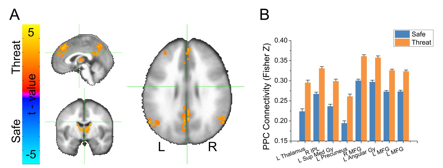 Threat of shock increases excitability and connectivity of the