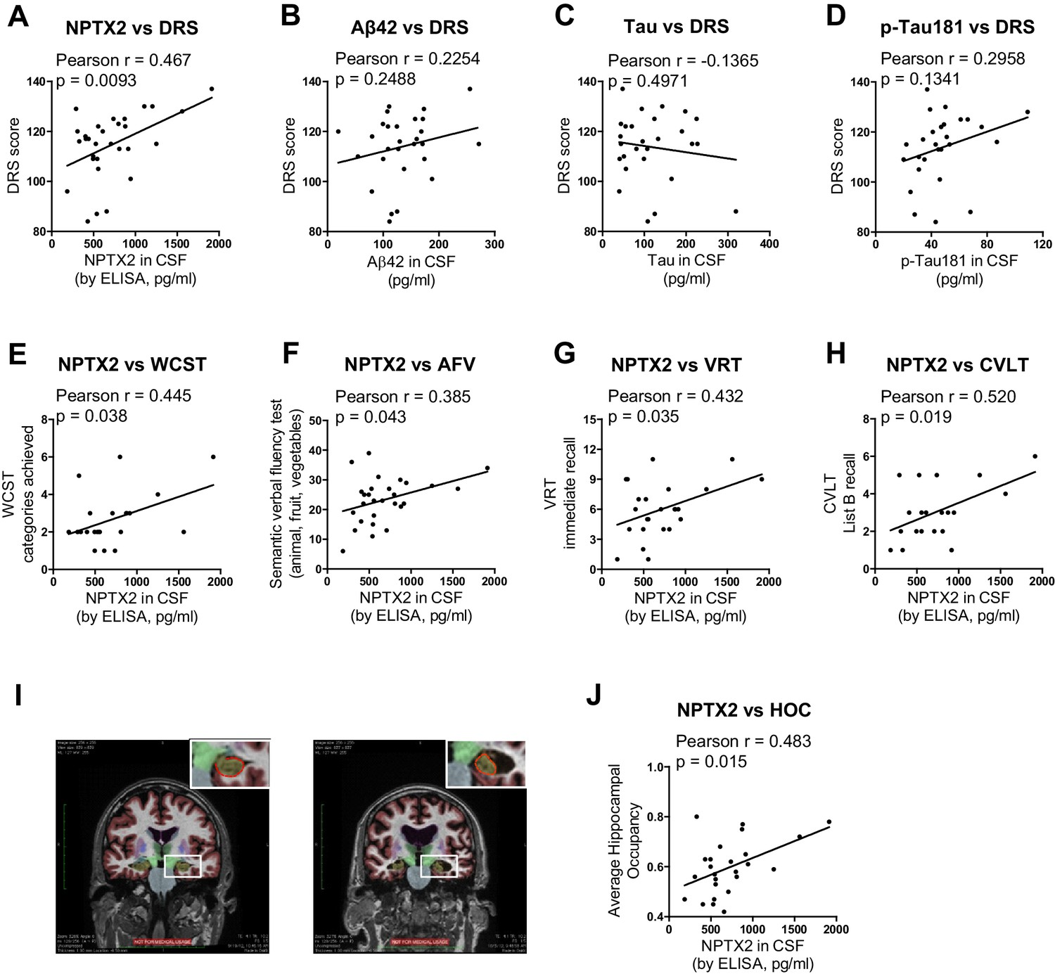 NPTX2 and cognitive dysfunction in Alzheimer's Disease | eLife