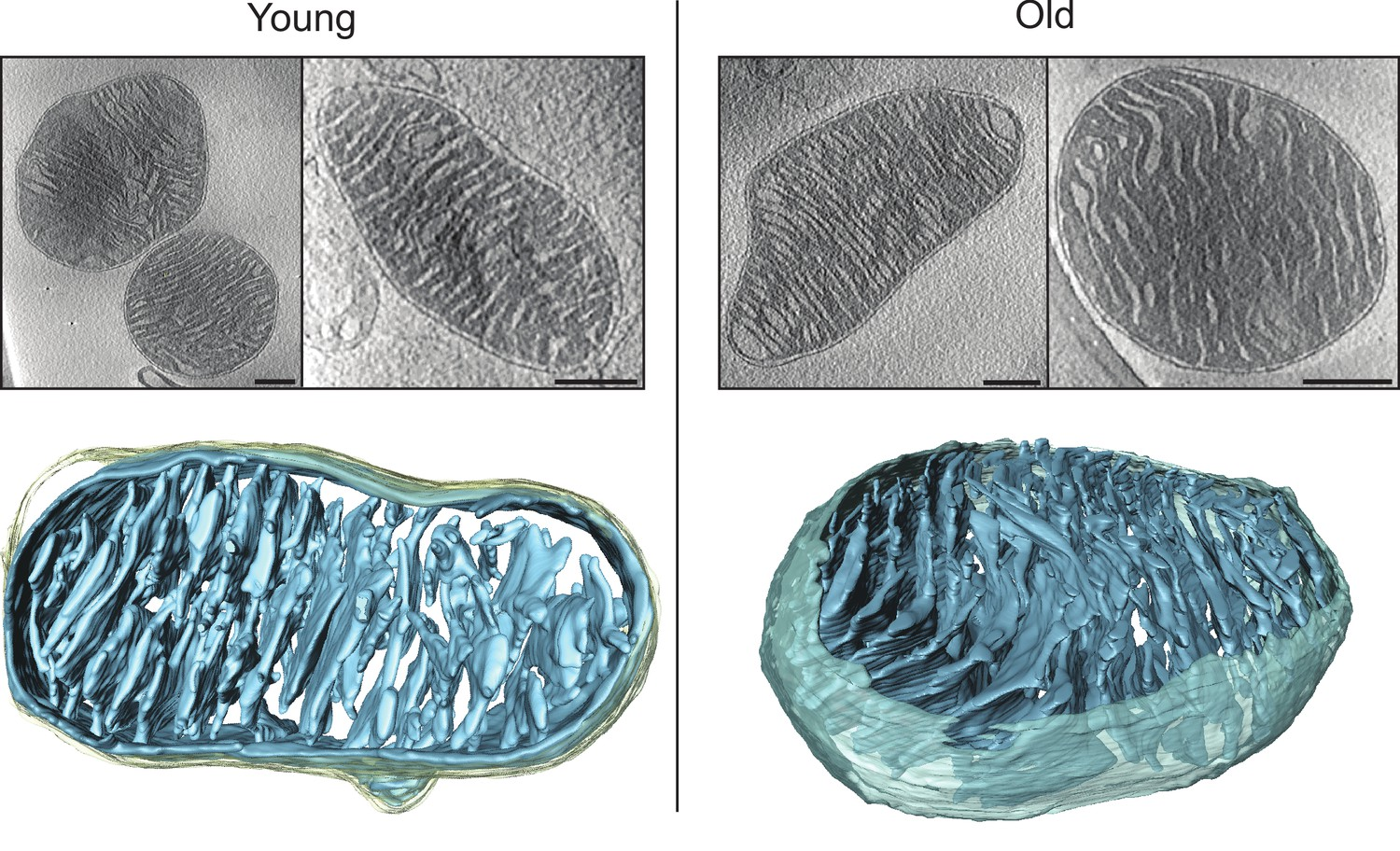 Changes Of Mitochondrial Ultrastructure And Function During