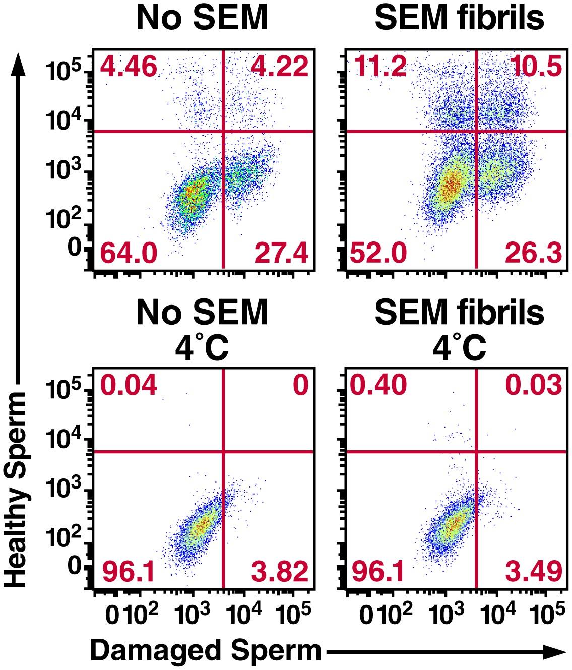 Semen amyloids participate in spermatozoa selection and