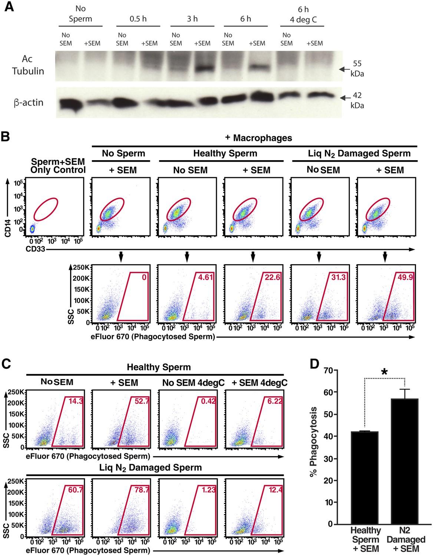 Semen Amyloids Participate In Spermatozoa Selection And Clearance