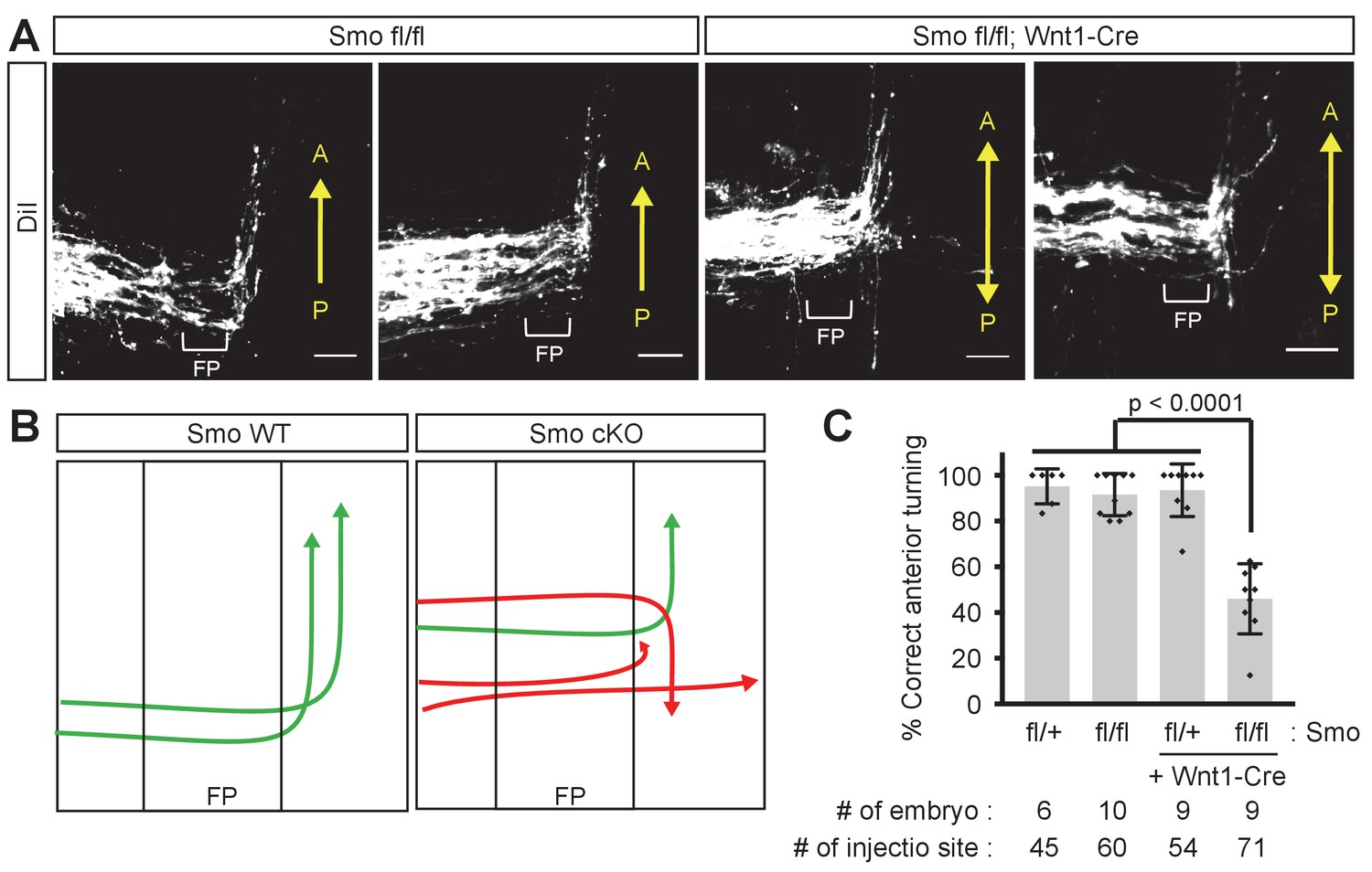 sonic hedgehog switches on wnt planar cell polarity signaling in