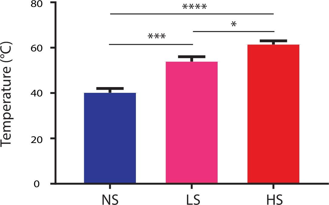 Chronic pain induces generalized enhancement of aversion   eLife