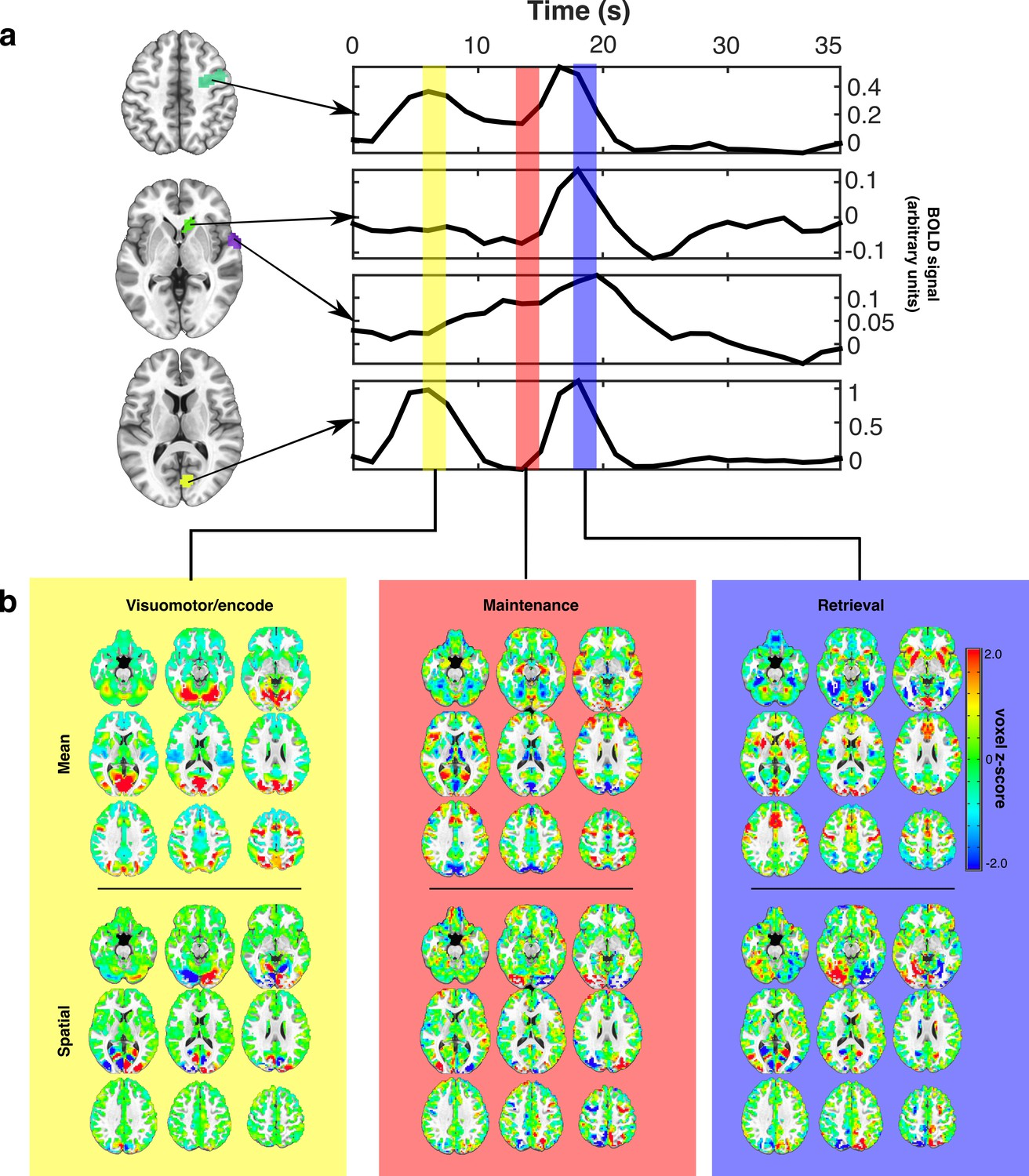 The Expression Of Established Cognitive Brain States Stabilizes With How Are Interrelated Is Shown In Statechart Diagram Estimating Canonical Task Related