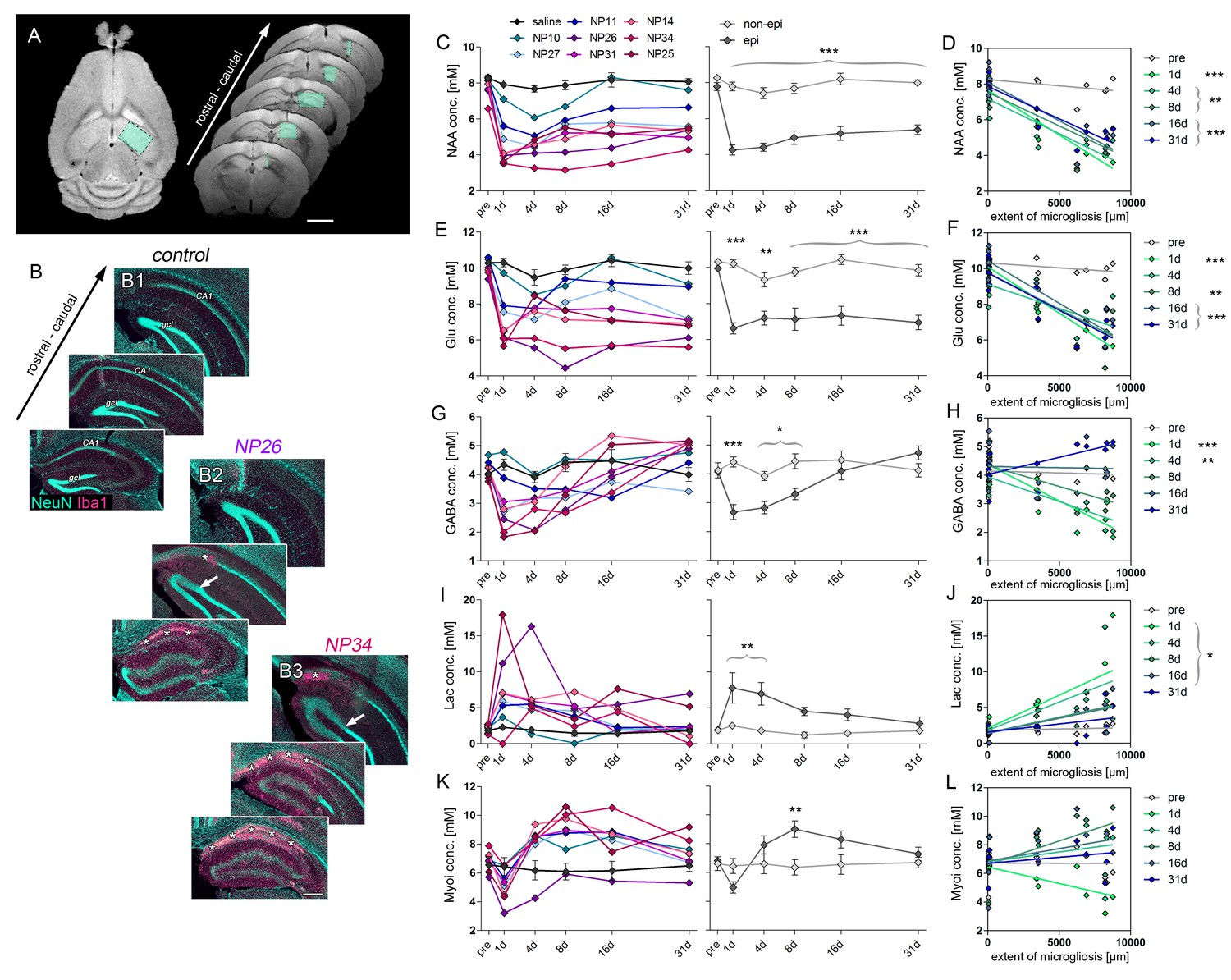 Early Tissue Damage And Microstructural Reorganization Predict Wiring Diagram For Steven Ma Decline Of Glutamate Gaba Hs