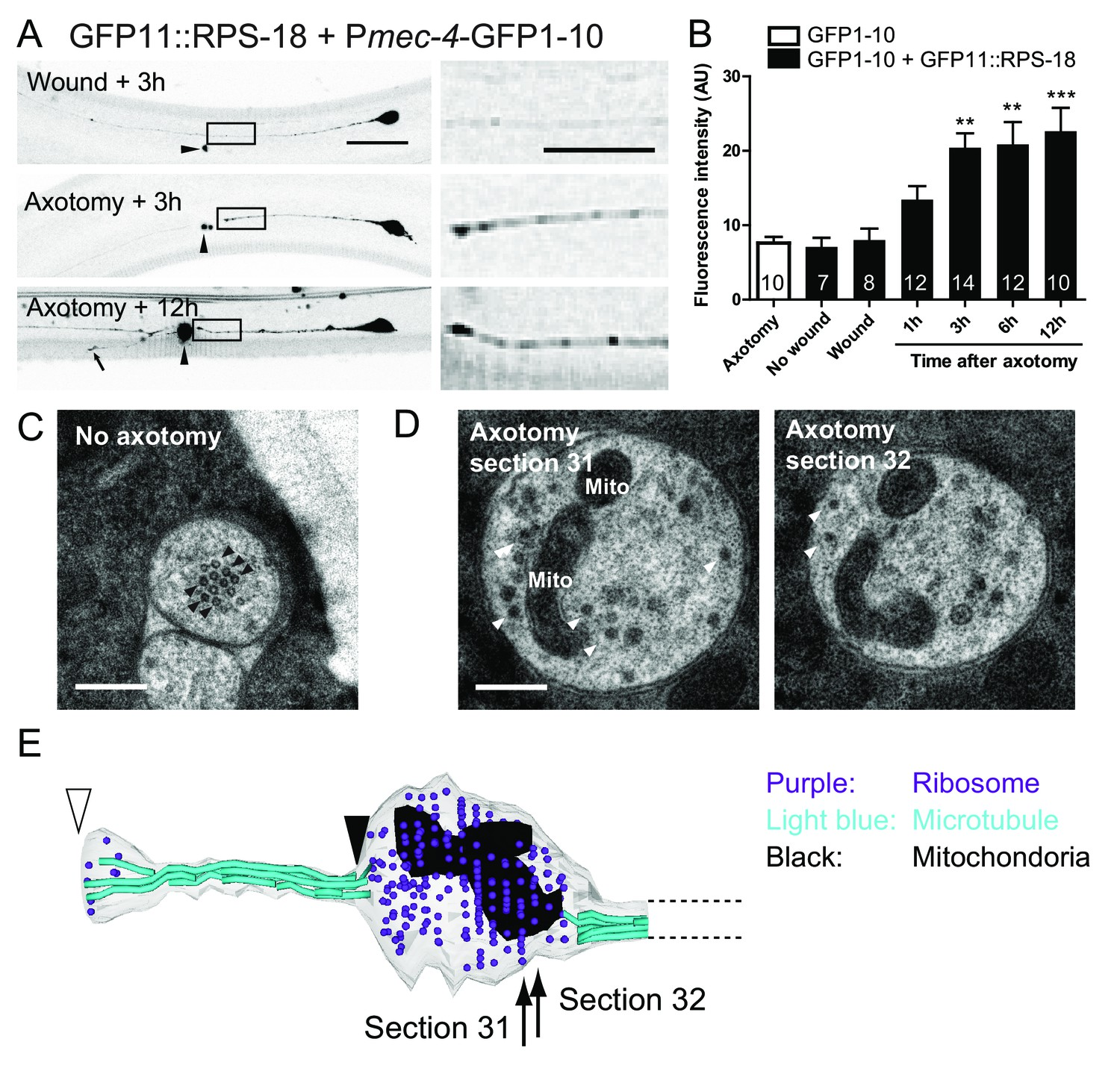 Microtubule Dependent Ribosome Localization In C Elegans Neurons Obviously The Circle With M It Is Fan Motor Ribosomes Accumulate At Tip Of Proximal Axons After Axon Injury Mechanosensory