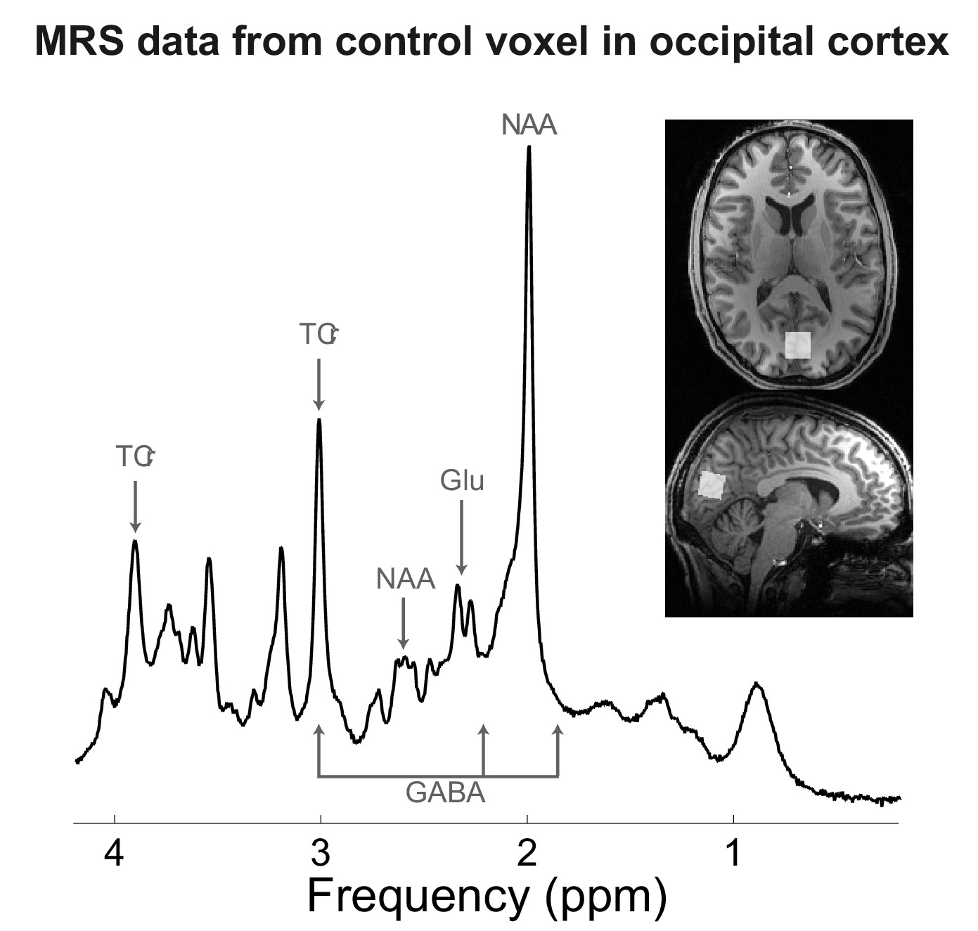 Induced Sensorimotor Cortex Plasticity Remediates Chronic Treatment Appendix D Electrical Guide Legend Oneline Diagrams Cont Mrs Data From Occipital Voxel In Experiment 7
