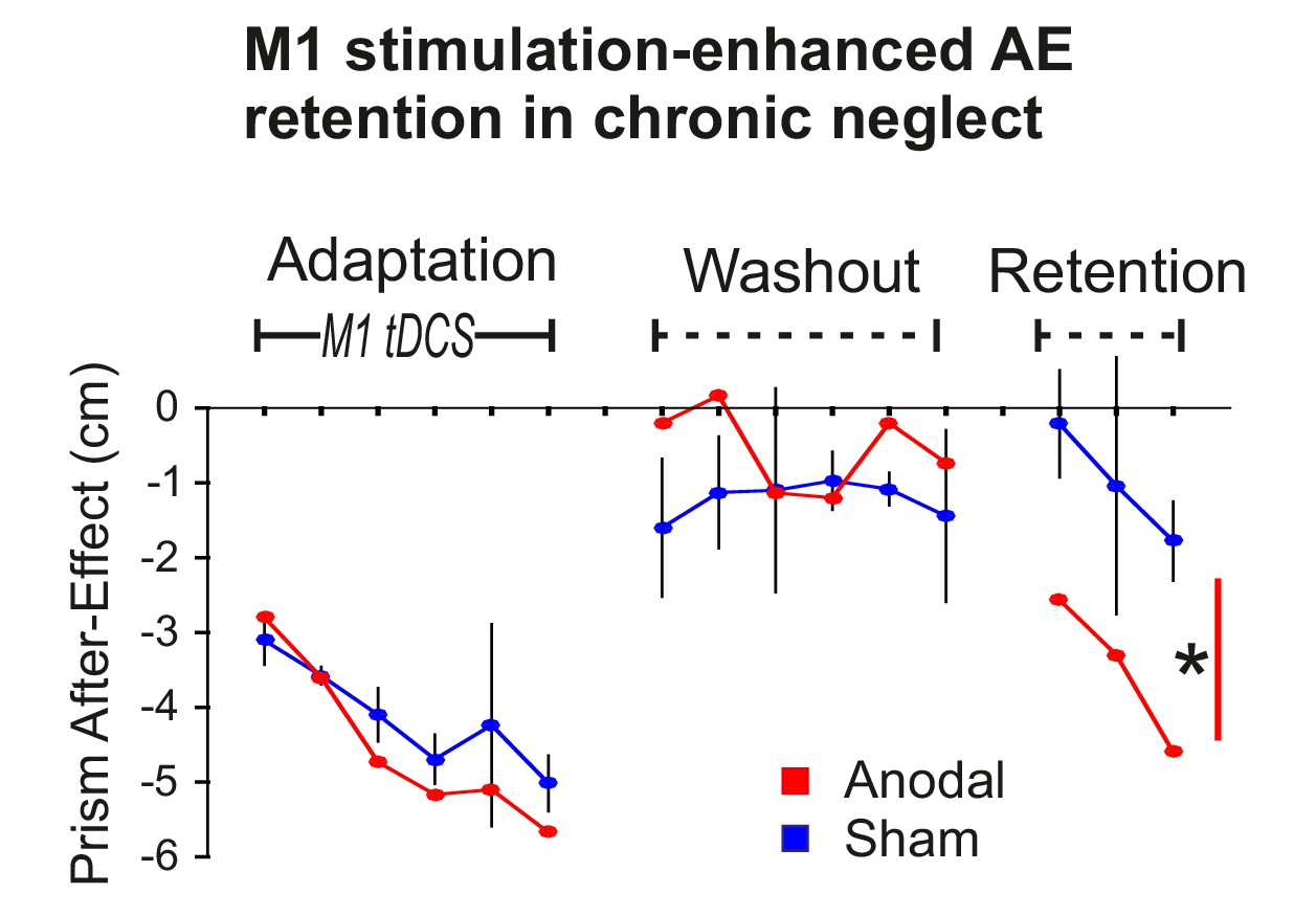 Induced Sensorimotor Cortex Plasticity Remediates Chronic Treatment Passive Tone Matrix Rather Like The Single Knob Control Stimulation Enhanced Retention In Neglect