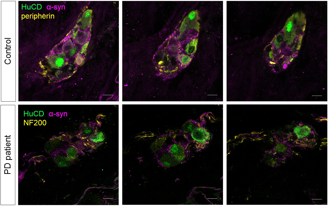 live calcium and mitochondrial imaging in the enteric