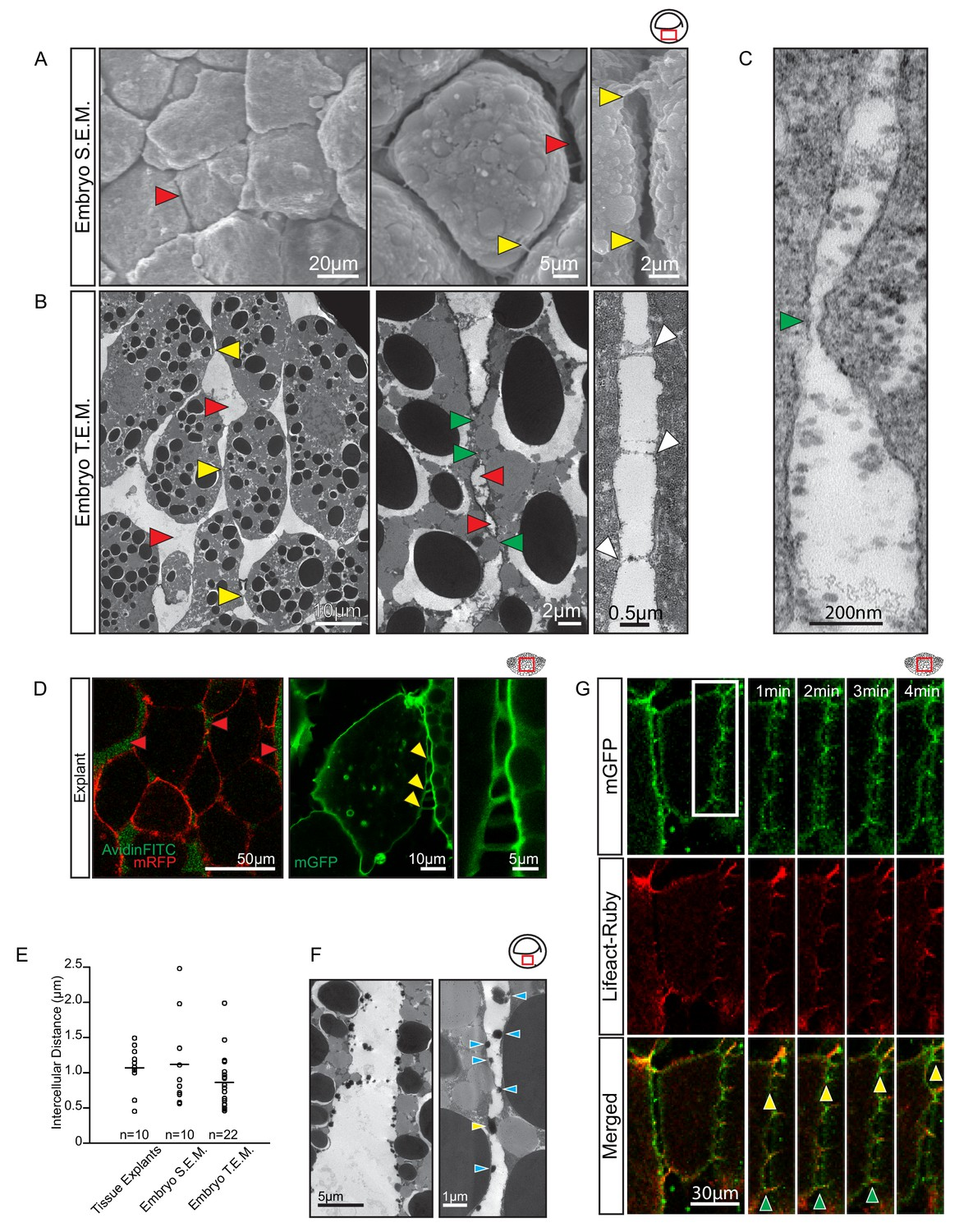 Ingression Type Cell Migration Drives Vegetal Endoderm Structure And Much More Interesting Information Cells Migrate Through Wide Interstitial Spaces