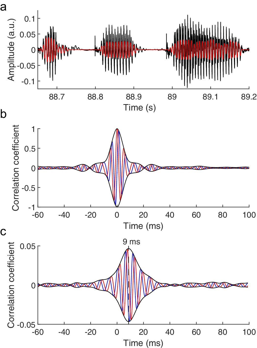 The human auditory brainstem response to running speech reveals a