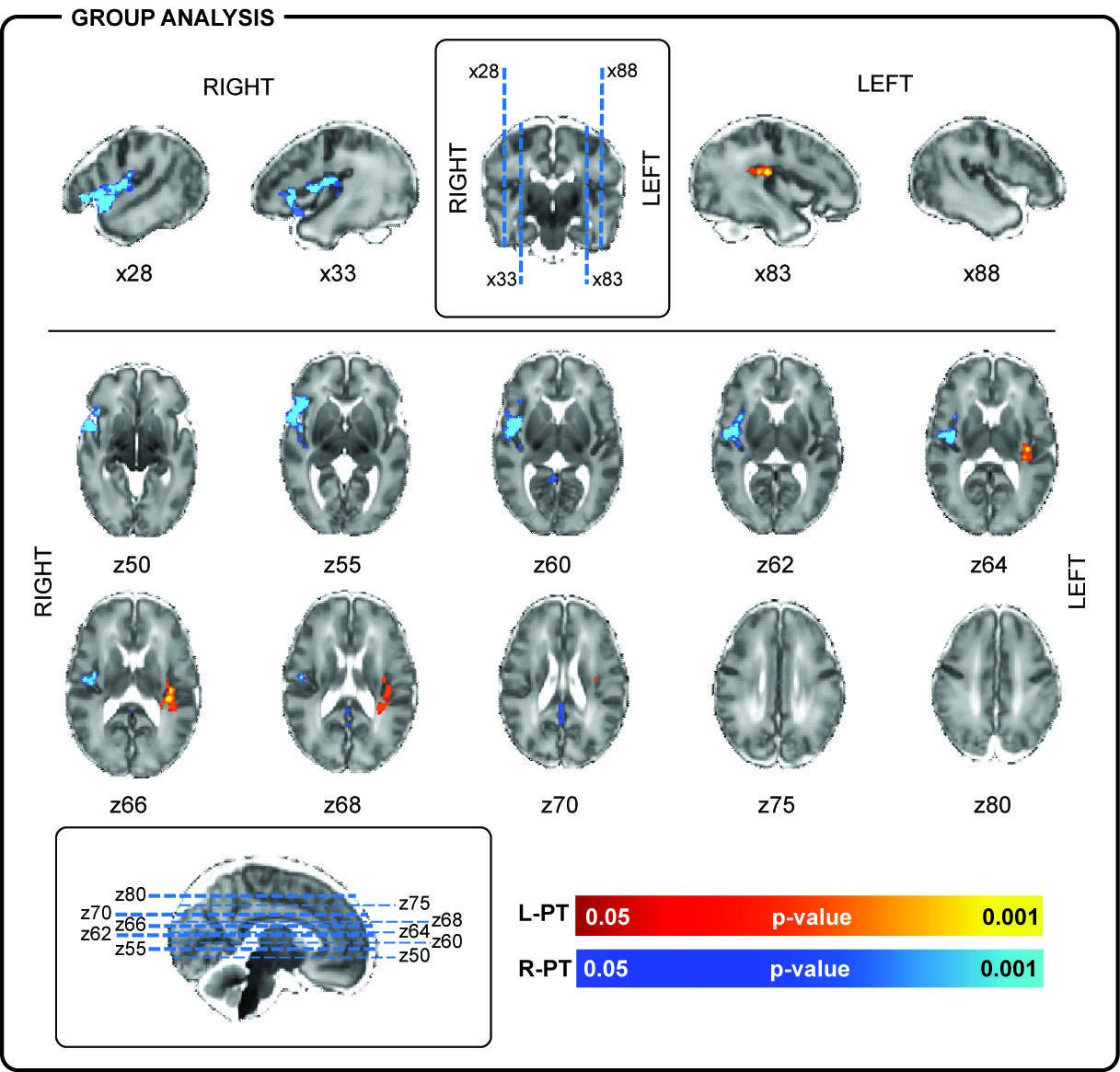 localization of brain Clinical localization of stroke syndromes prerequisites 1functional anatomy of brain 2blood supply to the different parts of brain 4 blood supply of brain-carotid arteries.
