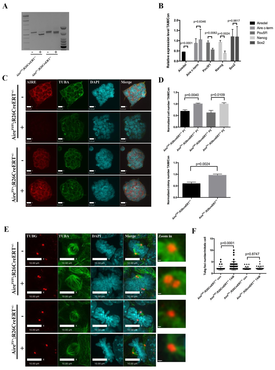 AIRE is a critical spindle-associated protein in embryonic