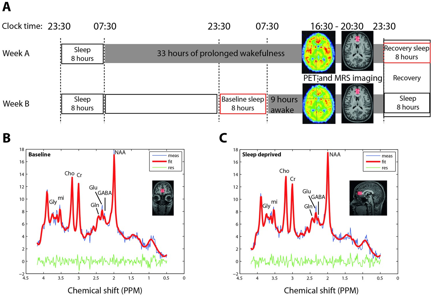 Cerebral Mglur5 Availability Contributes To Elevated Sleep Need And Diagram For Wiring 8 Pin Nr 51 Deprivation Imaging Protocol Representative 1h Mr Spectroscopy